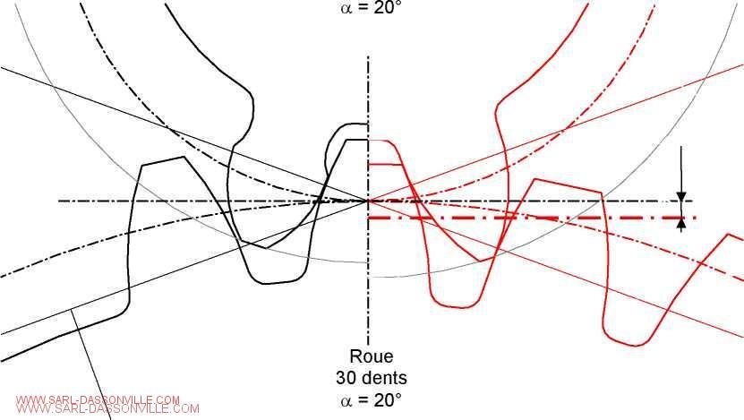 Correction de denture
